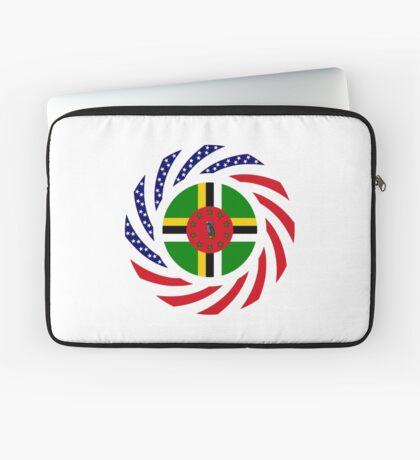 Dominica American Multinational Patriot Flag Series Laptop Sleeve
