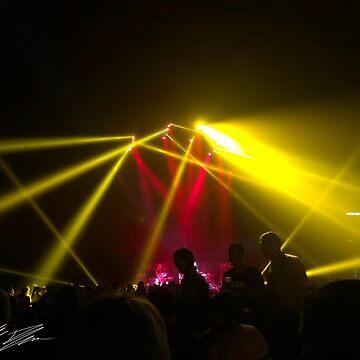 Yellow Laser Lights by TheTimekeeper