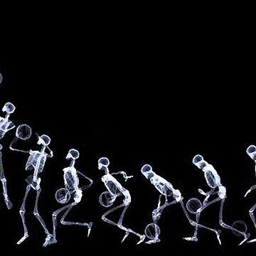 Skeletsball by EllipsisWorld