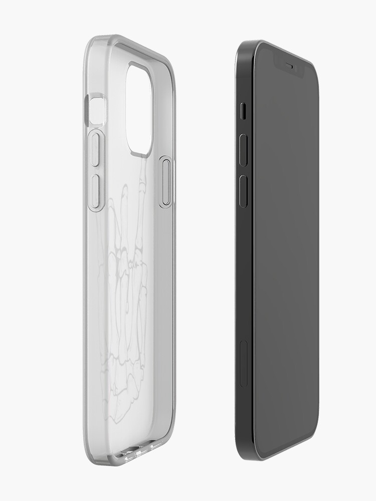 Alternate view of Rock iPhone Case & Cover