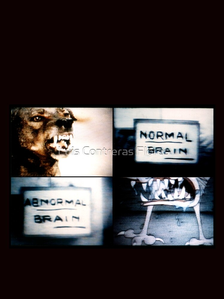 Normal Brain, Abnormal Brain de luiscontreras
