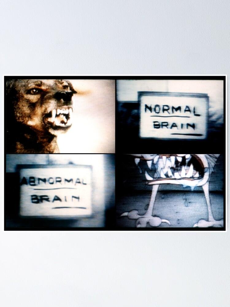 Vista alternativa de Póster Normal Brain, Abnormal Brain