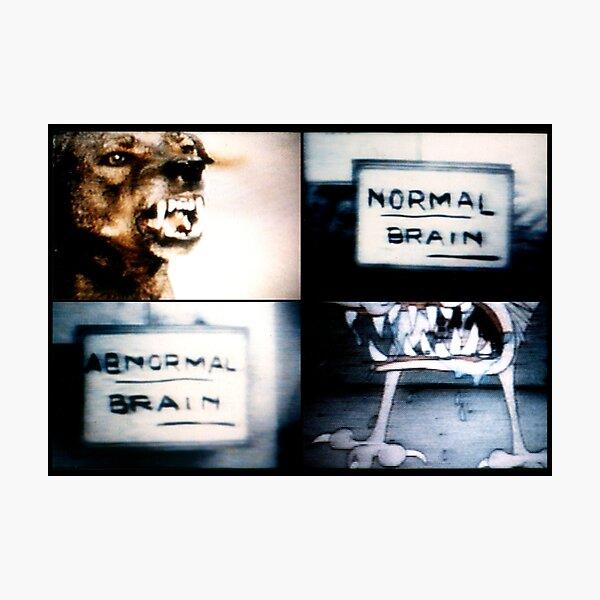 Normal Brain, Abnormal Brain Lámina fotográfica