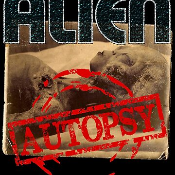 ALIEN AUTOPSY by PapaSquatch