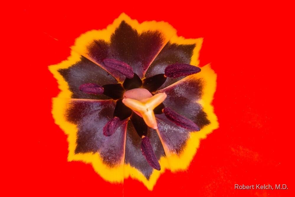 In My Favorite Tulip by Robert Kelch, M.D.