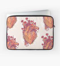 Sweet Heart Laptop Sleeve