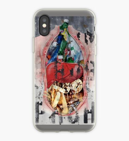Pain Body iPhone Case