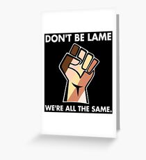 Don't be Lame We're all the Same Greeting Card