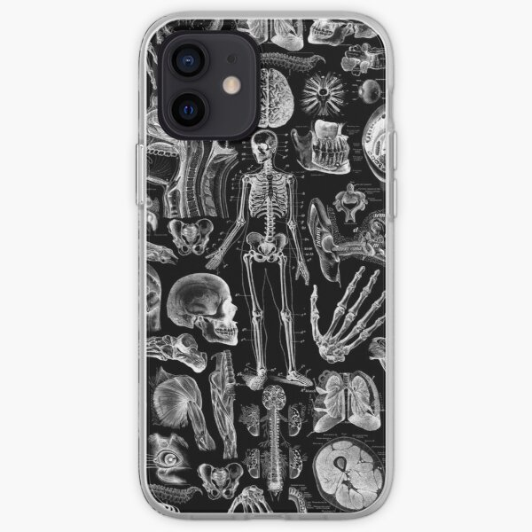 Human Anatomy Black Print iPhone Soft Case