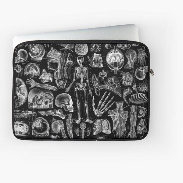 Human Anatomy Black Print Laptop Sleeve