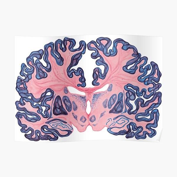 Gyri and Swirls of Human Brain Poster