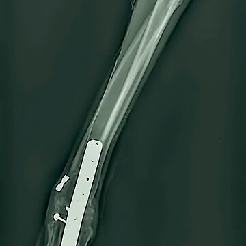 X-ray of a dog's front right leg at a veterinary surgery. Metal fixture and screws can be seen  by PhotoStock-Isra