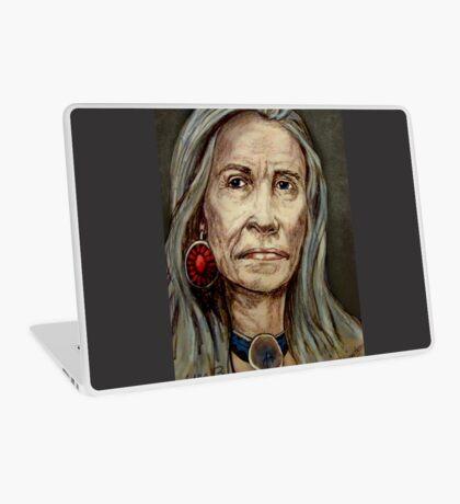 Squash Blossom Laptop Skin