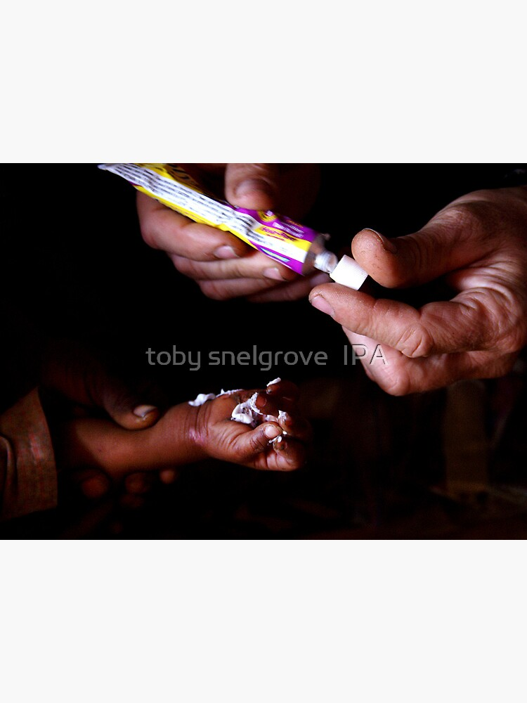 Healing Hands in Rajasthan, India by tobysnelgrove