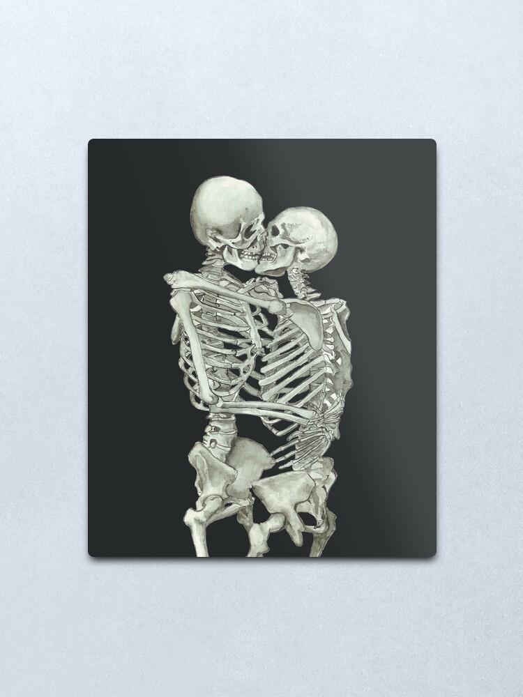 Alternate view of Skeleton Kiss: Immortal Lovers, Anatomy Love Valentines Gift Metal Print
