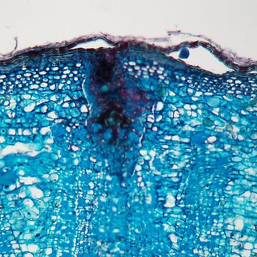 Cells of a plant stem with a disease under a microscope by Zosimus