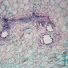 Plant cells with damages caused by a parasitic animal under the microscope by Zosimus
