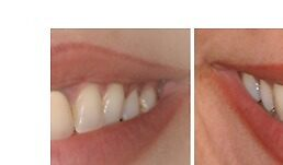 Periodontal Surgery Los Angeles by Implantcenter