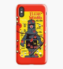 "The ""It's Just A Flesh Wound"" Game iPhone Case"