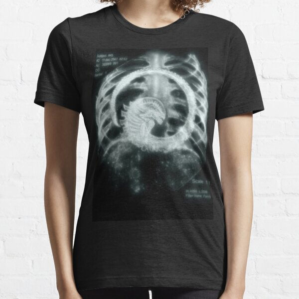 Desafortunada radiografia Camiseta esencial