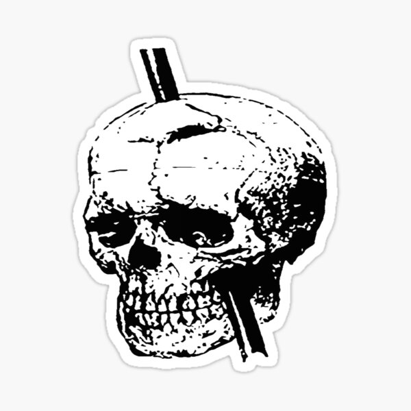 Skull of Phineas Gage With Tamping Iron Sticker