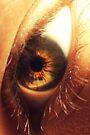 Central Heterochromia  by Joshua Greiner