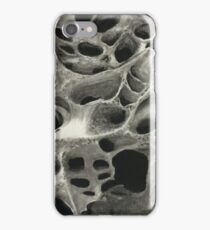 Charcoal Coral iPhone Case/Skin