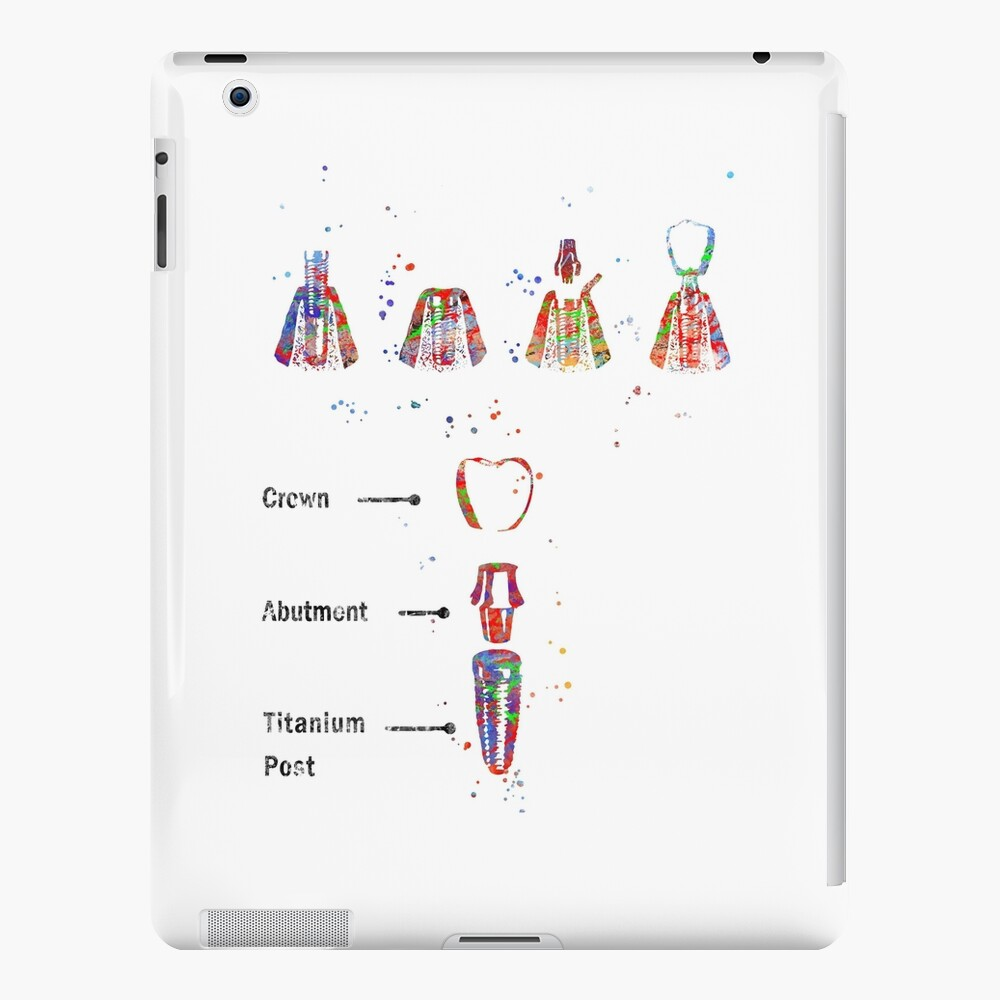 Dental implant procedure, dental anatomy, dental implant iPad Case & Skin