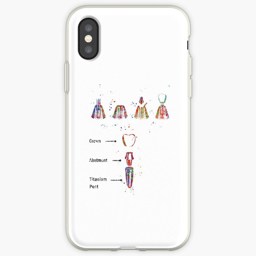 Dental implant procedure, dental anatomy, dental implant iPhone Case & Cover