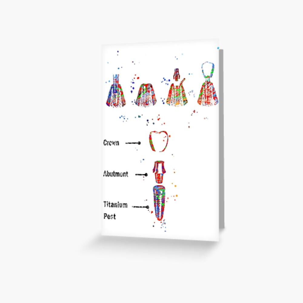 Dental implant procedure, dental anatomy, dental implant Greeting Card