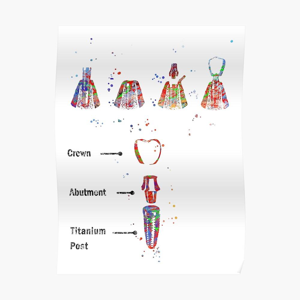 Dental implant procedure, dental anatomy, dental implant Poster