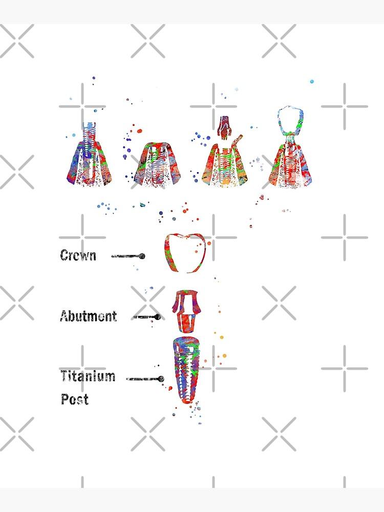 Dental implant procedure, dental anatomy, dental implant by Rosaliartbook