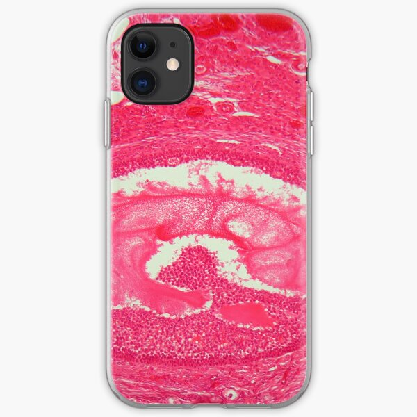 Ovary tissue under the microscope. iPhone Soft Case