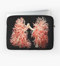 Real lungs - Respiratory system Laptop Sleeve