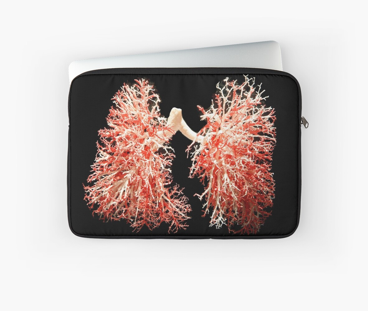 """""""Real lungs - Respiratory system"""" Laptop Sleeve by ..."""