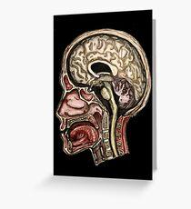 Sagittal head section Greeting Card