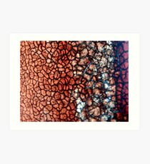 Dry Blood 400x Magnification Art Print