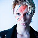 Ziggy played guitar by Anna Legault